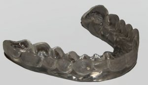 ferula dental bruxismo